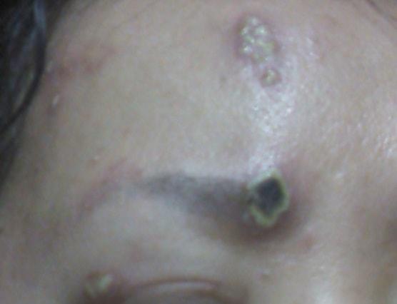 診断 初期 帯状 疱疹